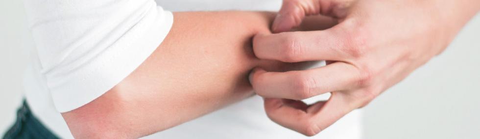 Eczéma : traitement naturel - Maryse Baar, guérisseur et magnétiseur